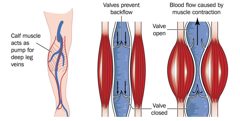 chronic-venous-insufficiency-