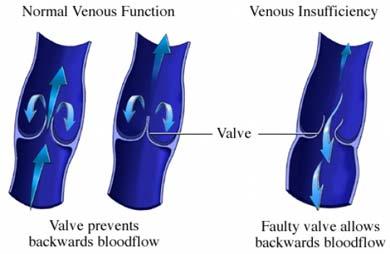 venous-insufficiency-treatment-orange-county